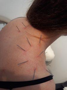 Akupunktur Kronisk Lidelse Akupunktur Huset Valby